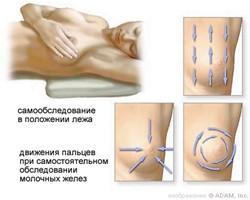 Как правильно проводить самообследование груди