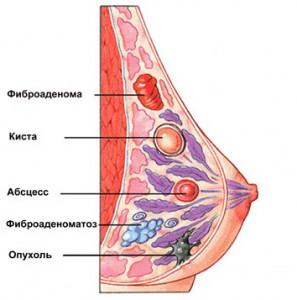 Доброкачественные опухоли молочных желез